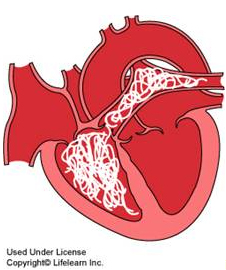 Heartworm Diagram